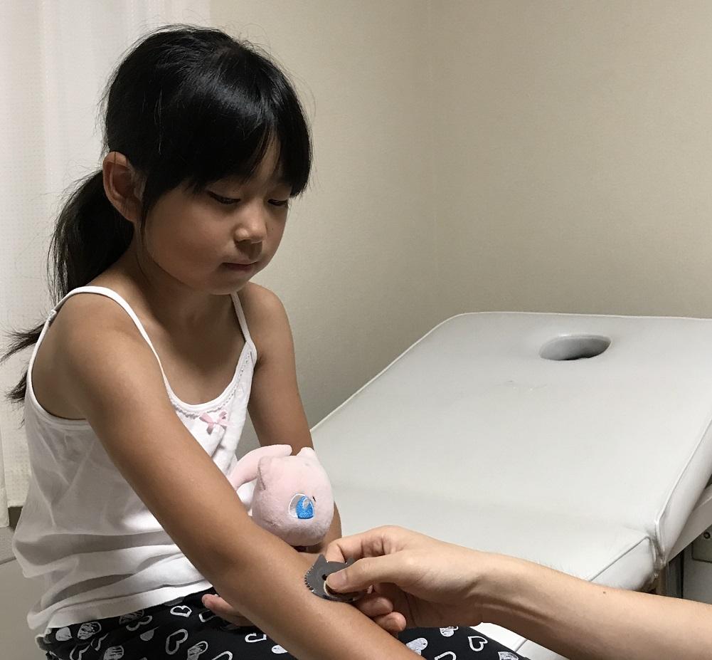 人形町治療院の小児はり